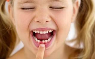 Удаление молочных зубов у детей: особенности