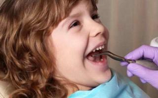 Фторирование зубов у детей: показания, отзывы