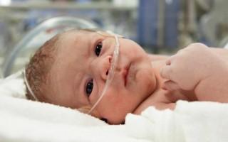 Гипоксия у новорожденных: последствия для ребенка