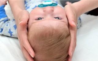 Кефалогематома у новорожденных на голове