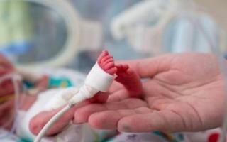 Недоношенные дети: физиология, уход