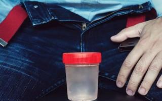 Подготовка к спермограмме мужчине