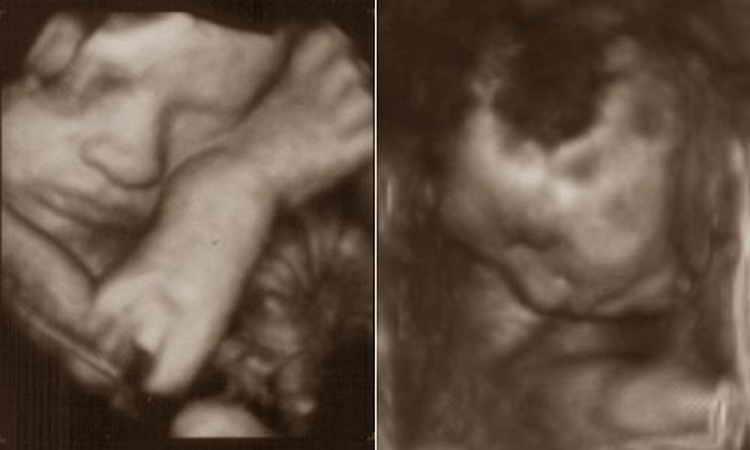 секс на 31 неделе беременности