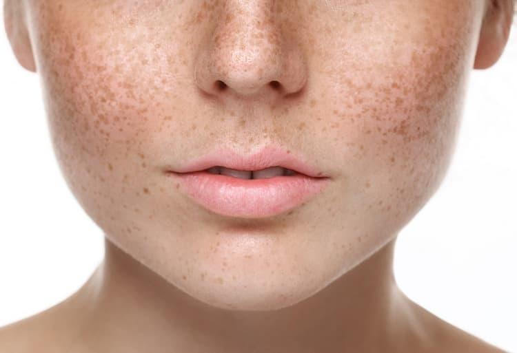 У многих женщин на 18 неделе беременности тянет них живота и появляются пигментные пятна на лице.