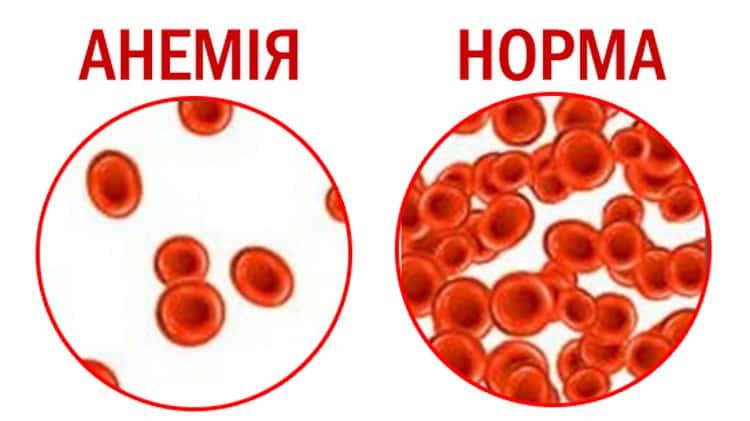 Как проявляется анемия у детей