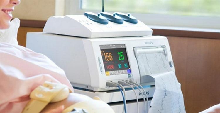 Для диагностики такой аномалии делают осмотр, а также могут провести кардиотокографию.