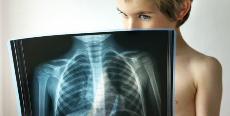 Антибиотики при пневмонии у детей: какие принимать