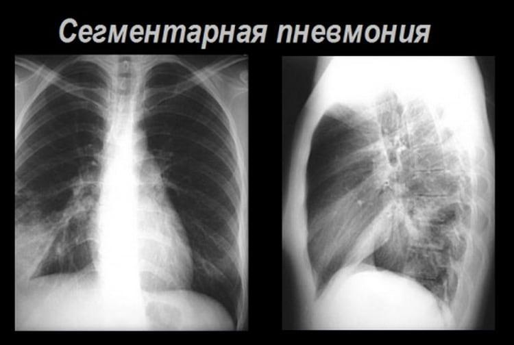 Сегментарная пневмония поражает уже большие участки легких.