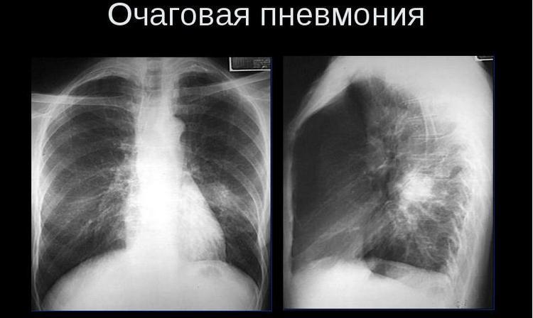 Очень часто у детей возникает очаговая пневмония.