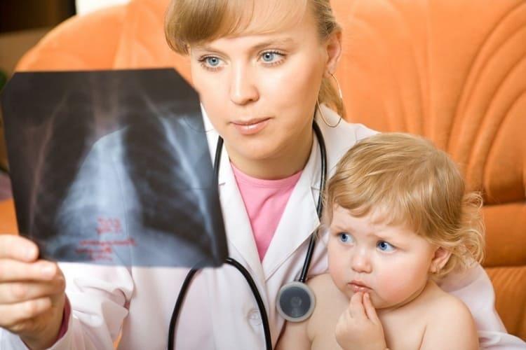 Назначать антибиотики при пневмонии у детей должен исключительно врач, правильно рассчитав дозировку.