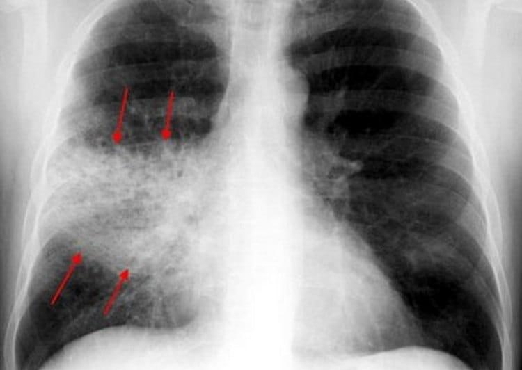 Очень большой участок легочной таки поражается при крупозной пневмонии.