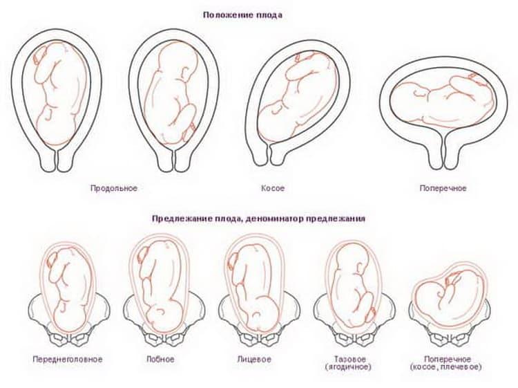 Какой вес плода на 33 неделе беременности