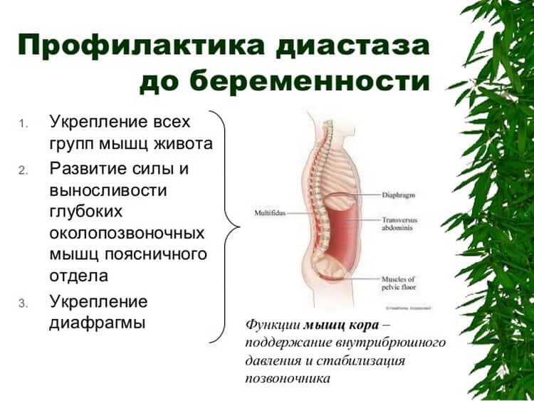 Какие упражнения при диастазе после родов