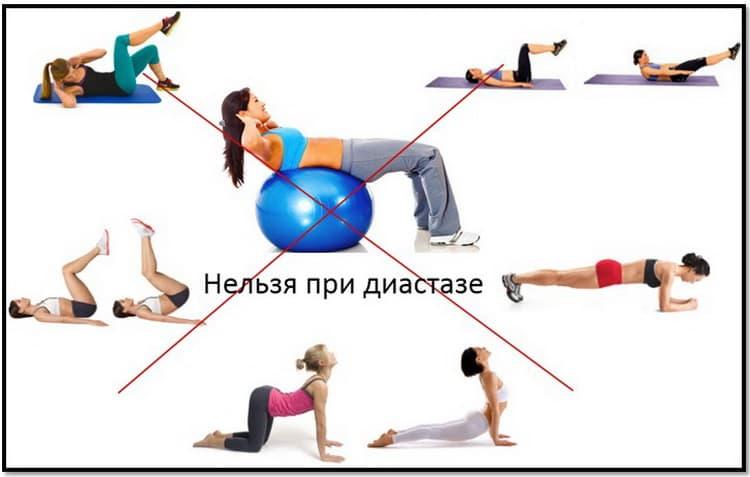 Какие упражнения при диастазе прямых мышц живота выполнят нельзя
