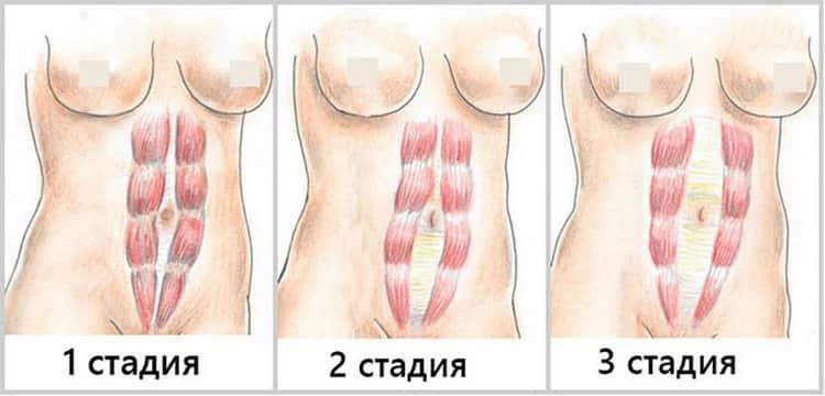 Диастаз после родов, что это