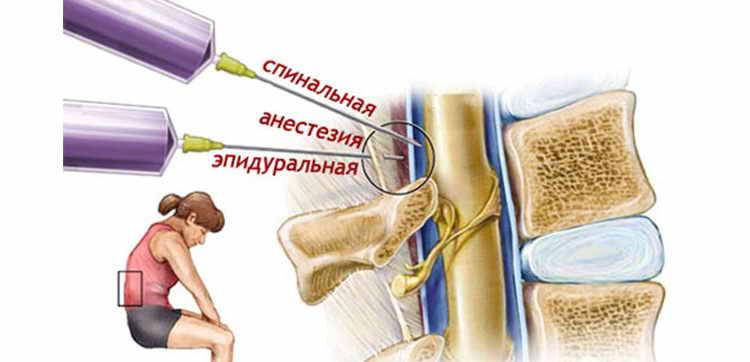 эпидуральная анестезия при родах последствия