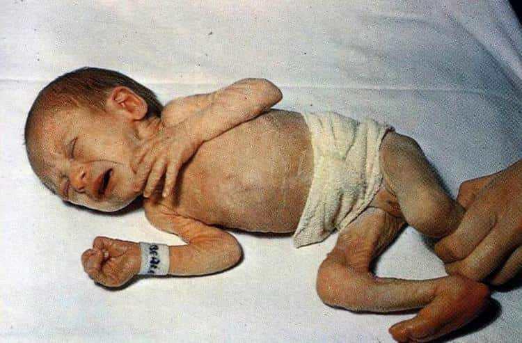 При 3 степени гипотрофии у детей ребенку нужна госпитализация.