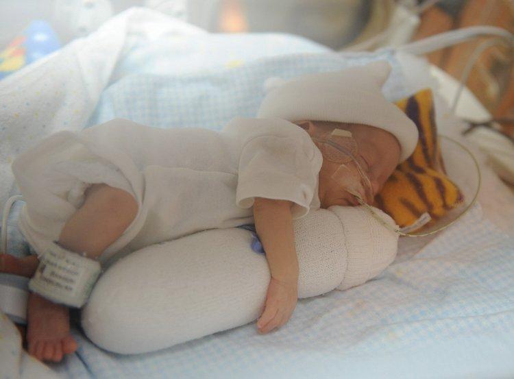 Спровоцировать гипотрофию могут даже сильная аллергия или, к примеру. лактазная недостаточность у малыша.