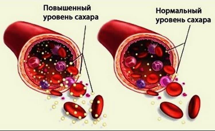 толерантный тест на глюкозу при беременности