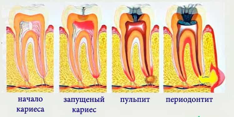 Нужно ли лечение зубов при беременности
