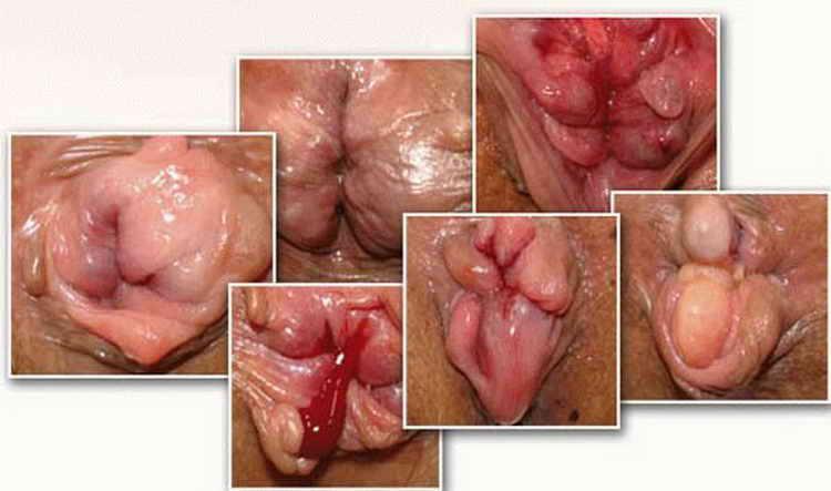как лечить геморрой после родов