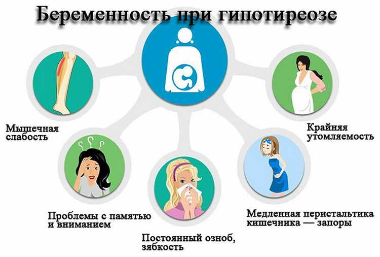 гипотиреоз при беременности последствия для ребенка
