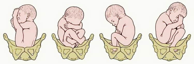 Как действуют ламинарии для стимуляции родов
