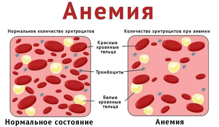 Как проявляется железодефицитная анемия у беременных