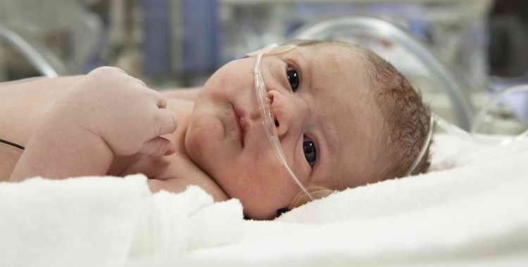 Асфиксия новорожденных: причины, лечение, профилактика
