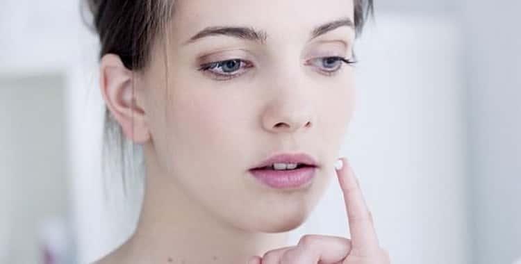 Герпес на губах при беременности: чем лечить