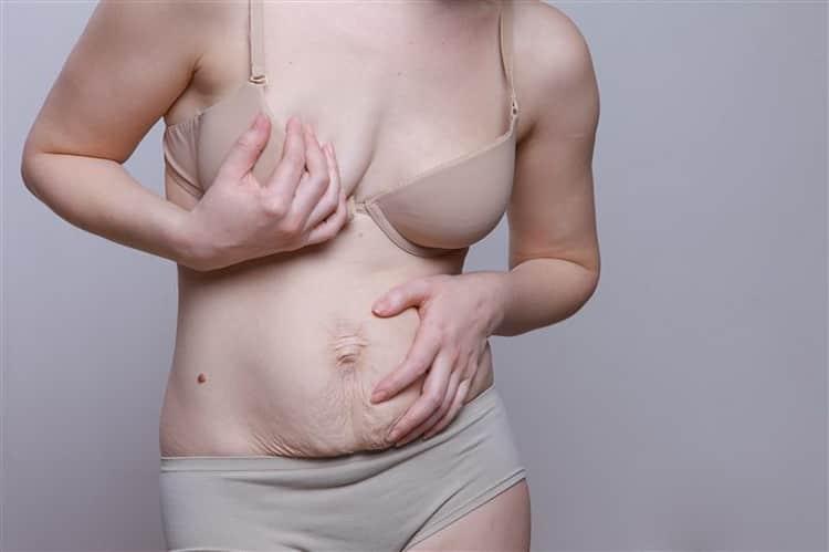 Смотрите как избавиться от растяжек после родов