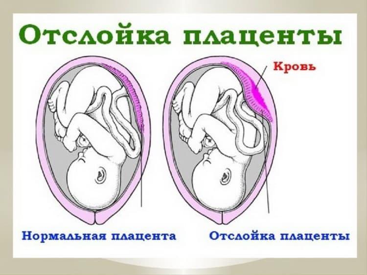 Последствия стремительных родов