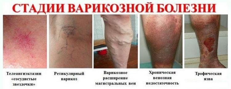 Чем опасен варикоз при беременности на ногах что делать