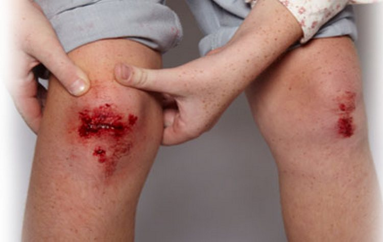 Одно из заболеваний в расшифровке прививки АКДС, которая нередко дает побочные эффекты, это столбняк.