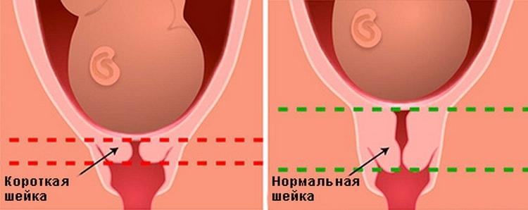Узнайте, что значит короткая шейка матки при беременности и чем опасно такое состояние.