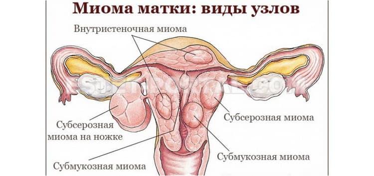 миома матки при беременности опасно ли это
