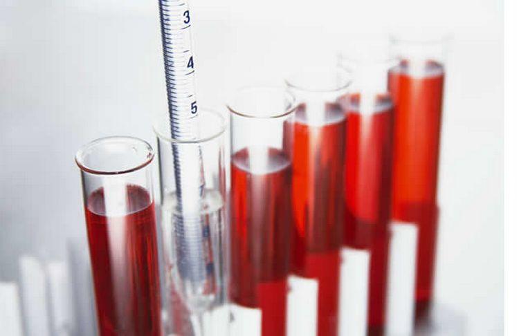 Значительно реже у беременных встречаются завышенные показатели гемоглобина.