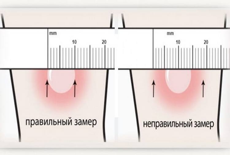 Размеры манту в норме у детей измеряются именно по размерам папулы, а не покраснения вокруг нее.