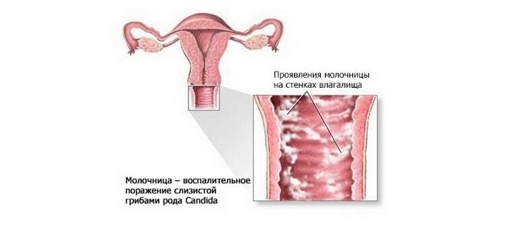 Узнайте чем можно лечить молочницу при беременности