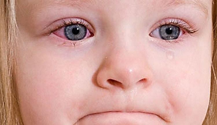 Многие дети из-за аллергии страдают от конъюнктивита.