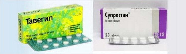Какие применяют антигистаминные препараты от зуда при ветрянке у детей