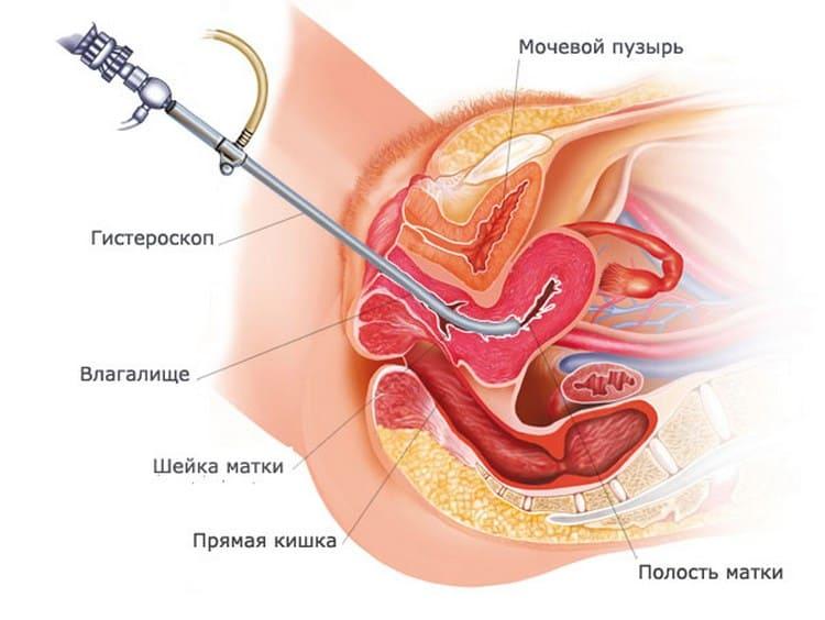 Почитайте также отзывы после операции гистероскопия.