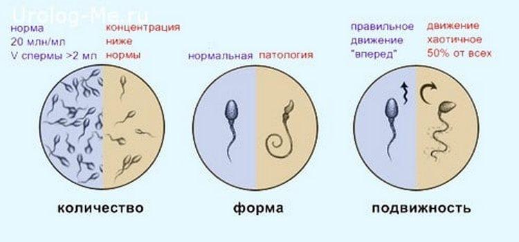О том, как улучшить качество спермограммы для зачатия, важно поговорить с урологом и андрологом.