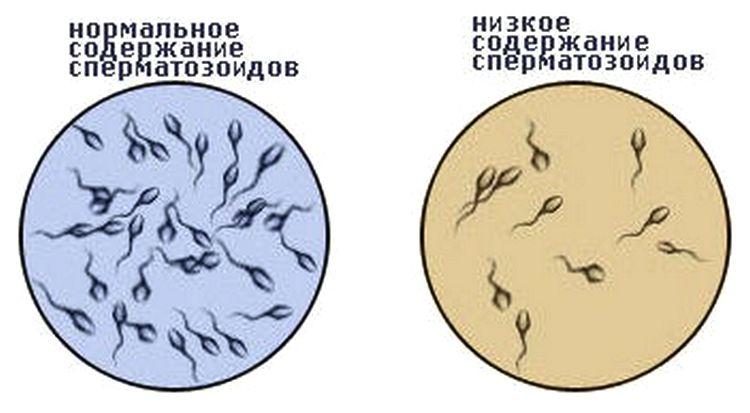 Чтобы знать, как улучшить морфологию спермограммы, важно понимать, какой должна быть норма.