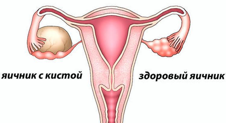 Киста яичника во время беременности нередко диагностируется у женщин.