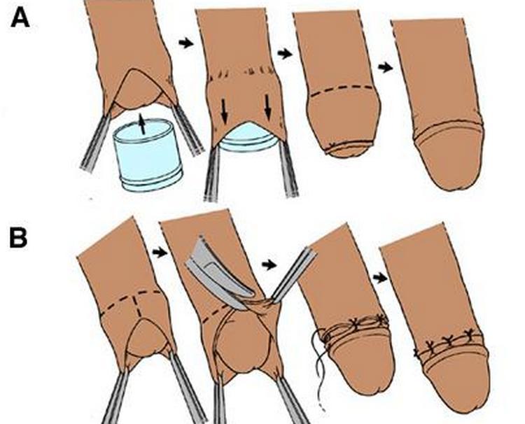 Узнайте, как делают обрезание мальчикам.