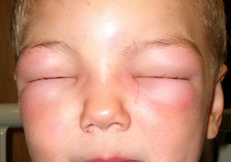 Как аллергическая реакция чрезвычайно опасен отек Квинке.
