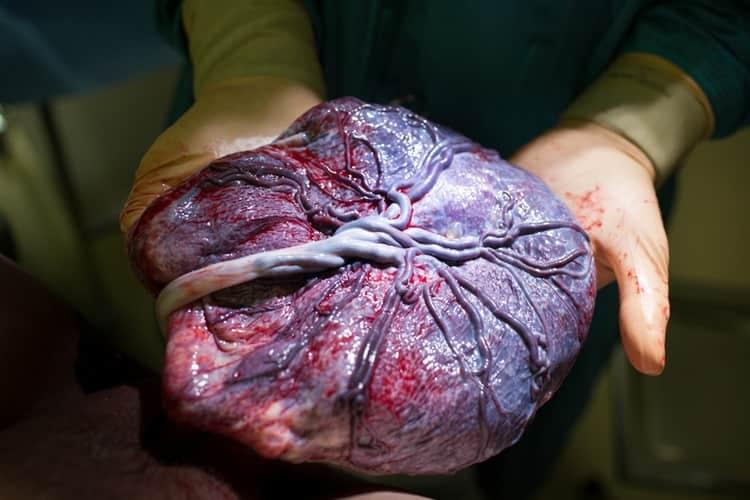 ручное отделение плаценты производится только в критической ситуации, которая несет опасность для жизни роженицы.