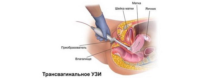 когда на узи видно беременность