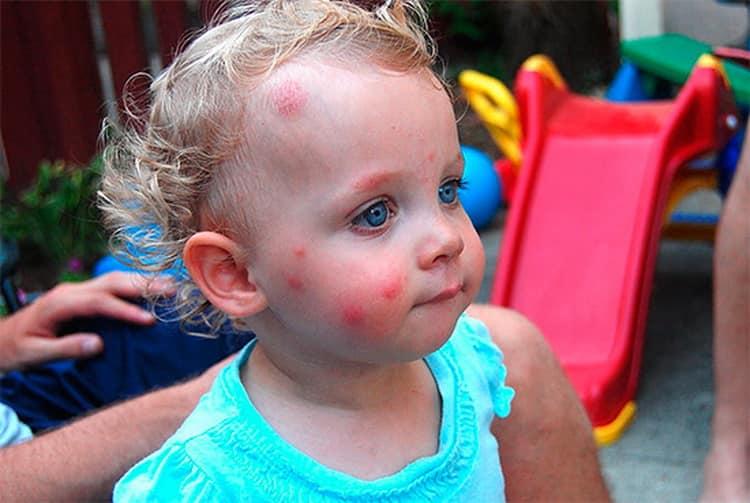 Как выглядит аллергия на укусы комаров у детей, фото